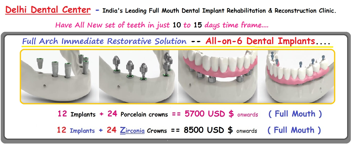 All On 6 Dental Implant Cost In India All On 6 Price Delhi India